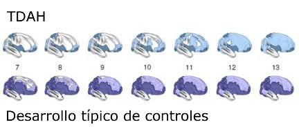 Desarrollo Típico de Controles